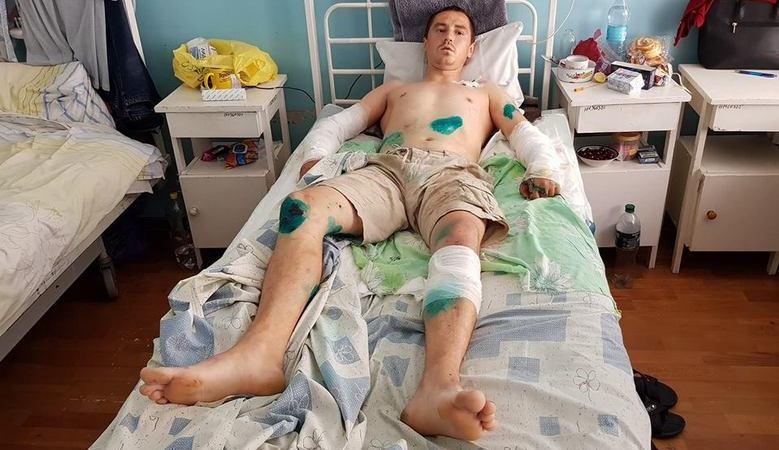 Нападение питбулей на жителя Дергачей. Новые подробности (видео)