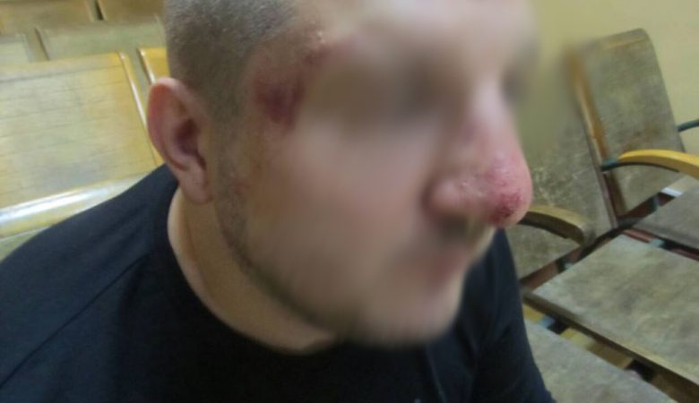 Харьковская полиция выясняет факт избиения пограничниками РФ гражданина Украины