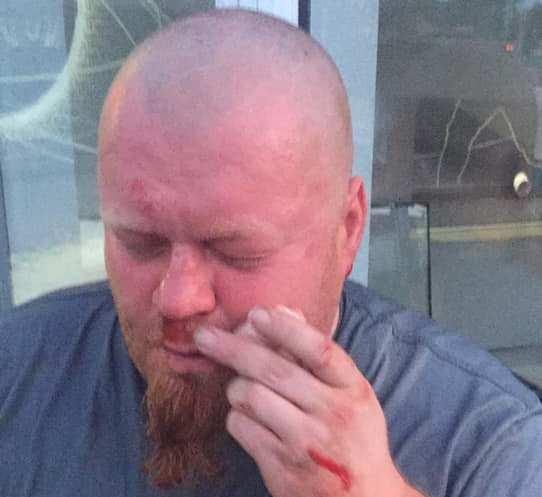 Журналисты ищут свидетелей нападения на оператора Вадима Макарюка