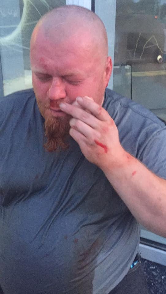 Жодній особі не повідомили про підозру в нападі на оператора теленовин під час конфлікту на харківському ринку (відео)