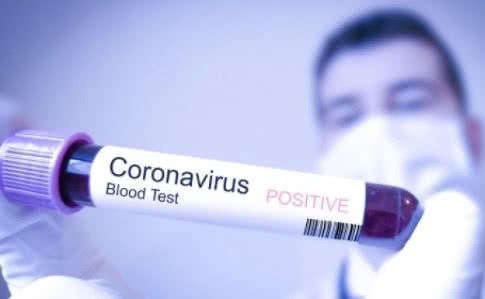 В Украине зарегистрировано почти 200 случаев заболевания Covid-19