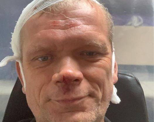 Под Харьковом избили битами экс-министра (фото)