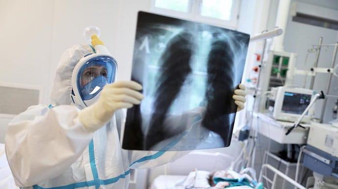 """COVID-19 в Харькове """"помолодел"""" – наблюдения главврача опорной больницы"""