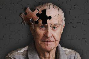 Болезнь Альцгеймера - самый распространенный вид деменции
